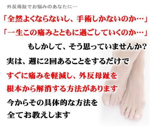 いずみ式 自宅でできる外反母趾改善法